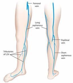 Preparing the Saphenous Vein for Coronary Artery Bypass Grafting - http://www.saphenousvein.net/preparing-the-saphenous-vein-for-coronary-artery-bypass-grafting/