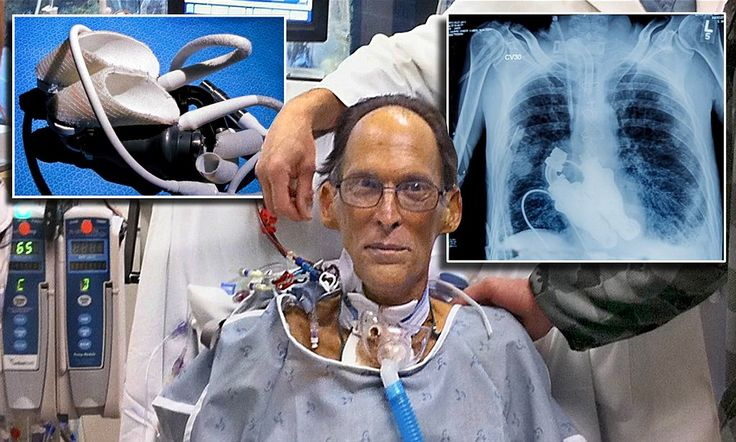 Meet the first HEARTLESS man who is able to live without a heartbeat or a PULSE