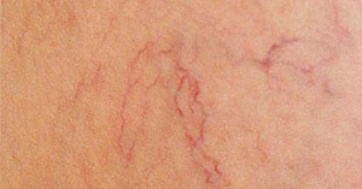 Rid yourself of spider veins easily!