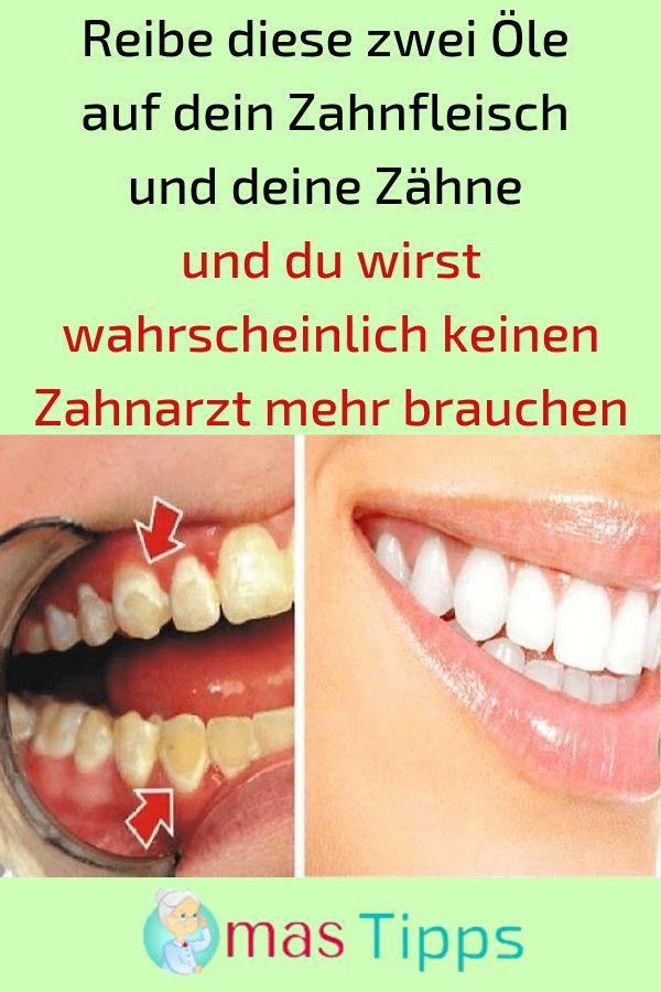 Reibe diese zwei Öle auf dein Zahnfleisch und dei…