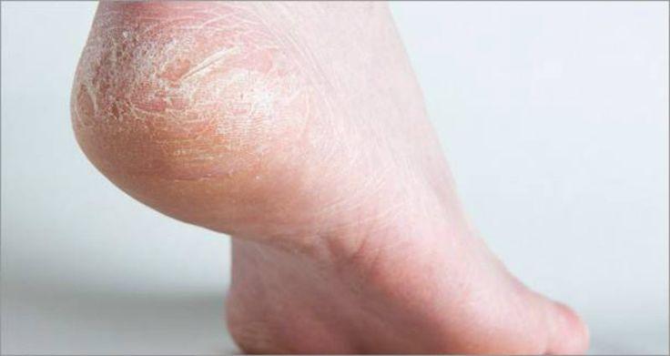 L'astuce pour se débarrasser de la corne de pieds noté 3.54 - 13 votes Àforce de frottements dans les chaussures, les pieds se défendent des agressions extérieures en stimulant la production de kératine, ce qui forme de la corne. On peut essayer de s'en débarrasser avec une râpe mais l'action de celle-ci favorisera en retour...