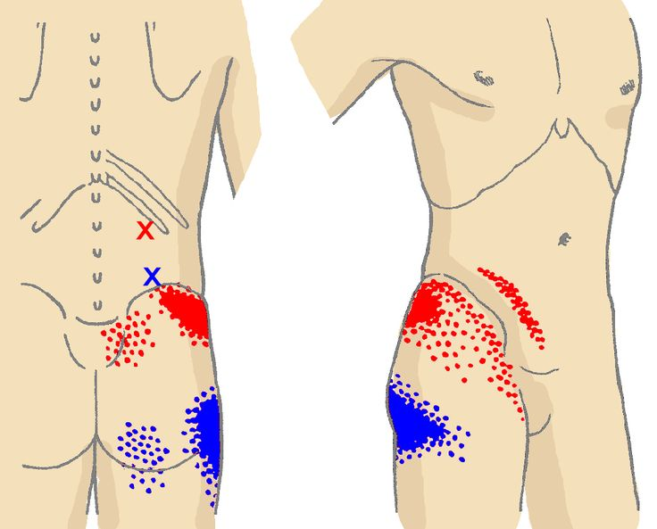 Front and Inner Thigh Pain | QUADRATUS LUMBORUM: This powerful muscle covers most of the lower back and runs from the lowest rib to the top of the pelvis. Its trigger points tend to send pain downward to the hip and buttock area, though it may also spread to the upper frontal thigh. The trigger point at the blue X in this diagram corresponds with the pain pattern indicated by the blue shading, and the red X produces the pain pattern shown by the red shading