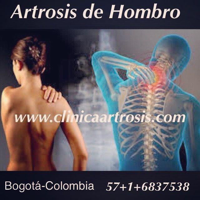 Artrosis de hombro: La artrosis puede afectar a cualquier articulación del cuerpo, incluyendo el área del hombro. Visite a nuestros médicos especialistas en www.clinicaartrosis.com PBX: 6836020 en Bogotá - Colombia.