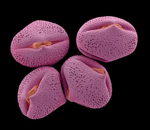 Cercis siliquastrum, Judas tree pollen [Rob Kesseler]  Author: Rob Kesseler FLS. FRSA. Date: 2009 Technique: Hand coloured SEM Source: Rob Kesseler, Madeline..