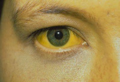 Ηπατίτιδα. Τι είναι, πώς μεταδίδεται, πώς προλαμβάνεται και ποια ηπατίτιδα θεραπεύεται πλήρως; - MEDLABNEWS.GR / IATRIKA NEA