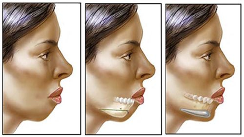 how long do chin implants last