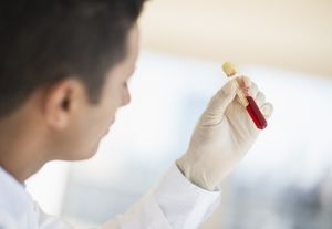 Celiac-blood-tests-Tetra-Images.jpg - Getty Images/Tetra Images