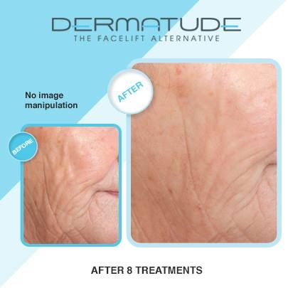 Amazing results with Dermatude!