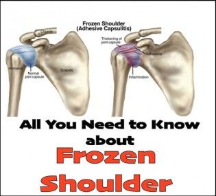 All You Need to Know about Frozen Shoulder