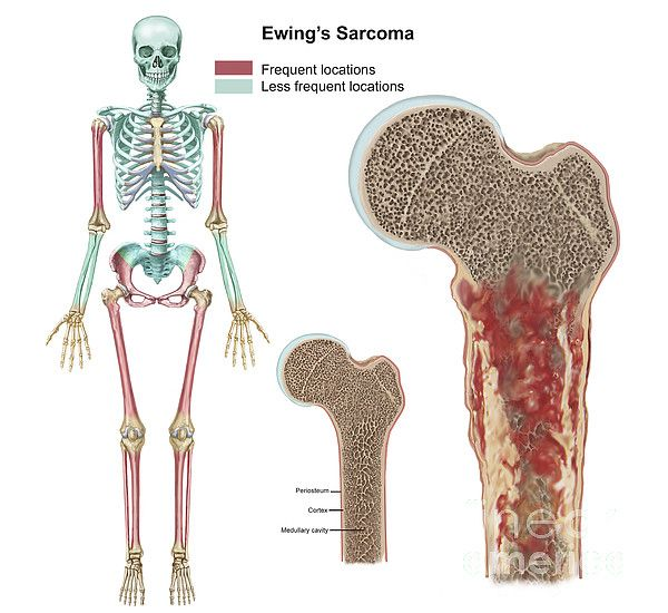 Ewing sarcoma is a type of tumor that forms from a certain kind of cell in bone or soft tissue. Ewing sarcoma may be found in the bones of the legs, arms, feet, hands, chest, pelvis, spine, or skull. Ewing sarcoma also may be found in the soft tissue of the trunk, arms, legs, head and neck, abdominal cavity, or other areas. Ewing sarcoma is most common in adolescents and young adults.
