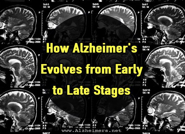On average, people age 65 and over survive four to eight years after Alzheimer's diagnosis. However, some live for as many as 20 years.
