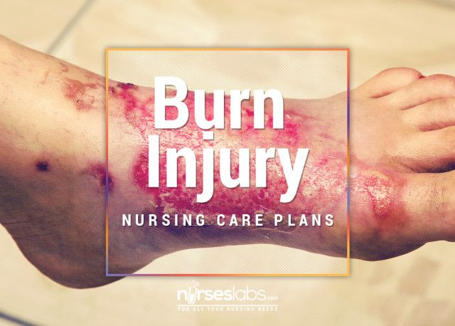 11 Burn Injury Nursing Care Plans - Nurseslabs