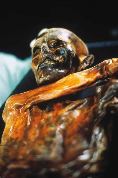 New research on the remains of 'Oetzi', the world's oldest wet mummy, has revealed that his violent death was not the only misfortune suffer...