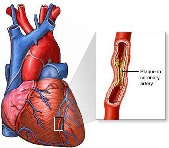 Five Crucial Facts About Ischemic Heart Disease