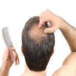 Natural Cure For Baldness