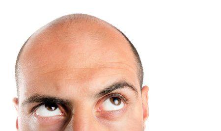 Erhalten Sie eine ideale Problembewältigung bei Haarausfall mithilfe einer FUE Eigenhaartransplantation. Beim Haare transplantieren in der Türkei werden Sie von fachkundigen Fachärzten mit zeitgerechten Verfahren behandelt.