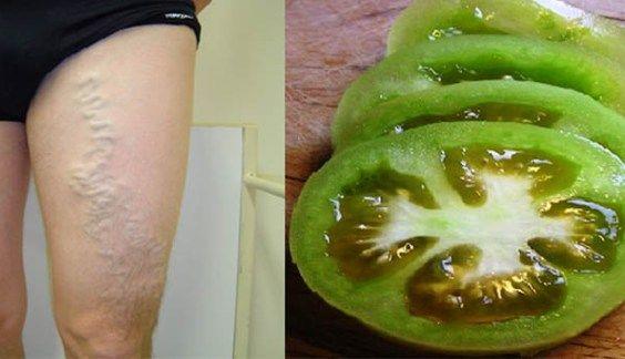 Hoe u spataderen kunt genezen met behulp van tomaat
