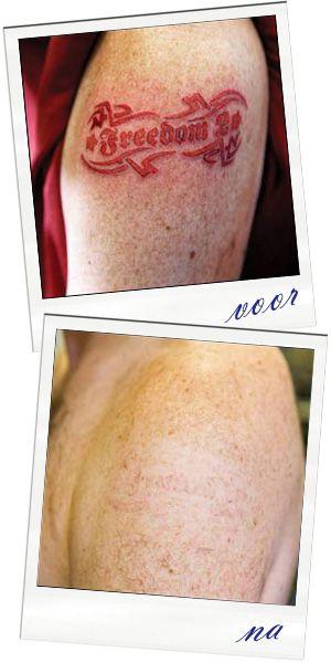 Heb je spijt van je tattoo? Vind je hem niet meer mooi? Is je relatie over, of levert je tattoo een probleem op bij je werk? Geen probleem. Met onze  TSR PRO ND YAG 3 laser realiseren we zeer goede resultaten, en kunnen we gemakkelijk iets aan deze stoorfactor doen.  Onze ervaren behandelaars maken tijdens een (gratis) intakegesprek een schatting van het aantal behandelingen om jouw tattoo weg te laseren.