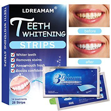 Teeth Whitening Strips,Teeth Bleaching,Teeth Whitening Kit – Remove Teeth Deep And Surface Stains – 28… Review