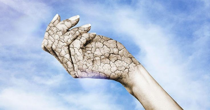 Ξηρό δέρμα: Για ποια 4 σοβαρά προβλήματα υγείας προειδοποιεί