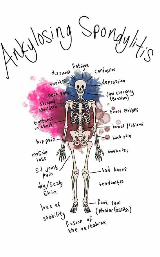 Ankylosing spondylitis autoimmune chronic pain inflammation