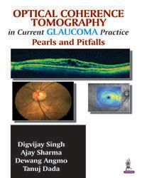 Optical Coherence Tomography in Current Glaucoma Practice Pearls and Pitfalls