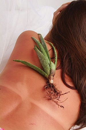 Sunburn? Ouch! Apply the gel of an older aloe leaf, splitting the leaf open lengthwise--miracle plant! One of many natural sunburn remedies.