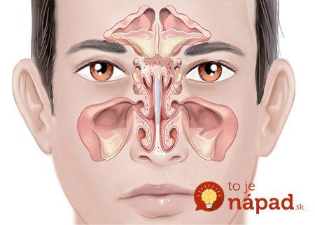 Zápal prínosových dutín, ktorému sa tiež hovorí infekcia prínosových dutín, je zápal sliznice a tkanina v nosových dutinách. Zdravé dutinysú vyplnené iba vzduchom, infekciu však spôsobujú prítomné baktérie. Medzi najčastejšie príznaky zápalu prínosových dutín sú