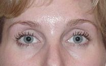 Our St Louis Botox result picture