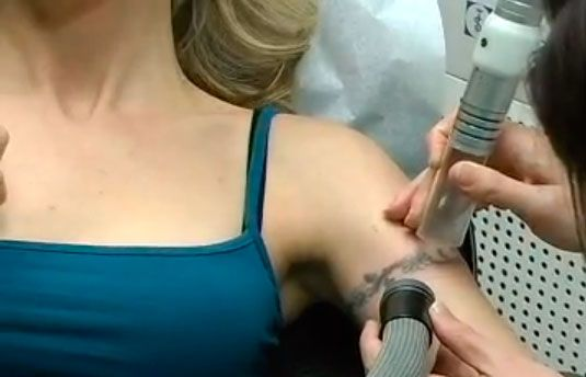 1000 images about tattoo removal on pinterest laser for Tattoo laser removal near me