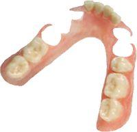 TCS partials - Metal-free, flexible partial denture