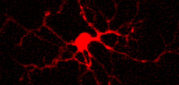 Scientists discover a new cause of epilepsy: Astrocyte uncoupling