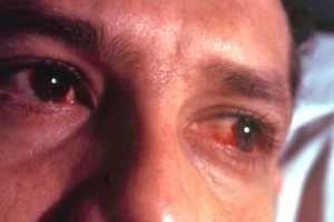 Remedios caseros como Tratamiento para la Conjuntivitis