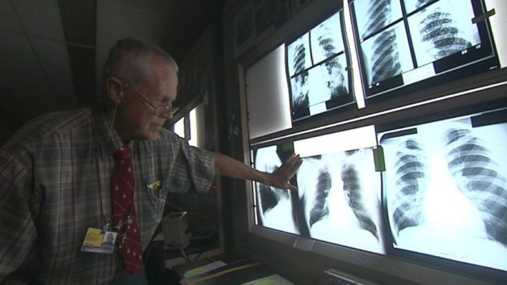 "For Top Hospital, Tough Questions About Black Lung and Money ~ Oct. 30, 2013 ~ Coal company paying the doctor to ""NOT SEE"" Black Lung So They Don't Have To PAY The Men That Worked For Them Their Whole Lives...."