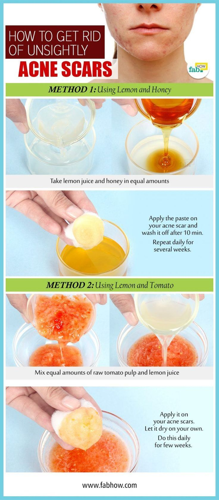 all natural home remedies for acne