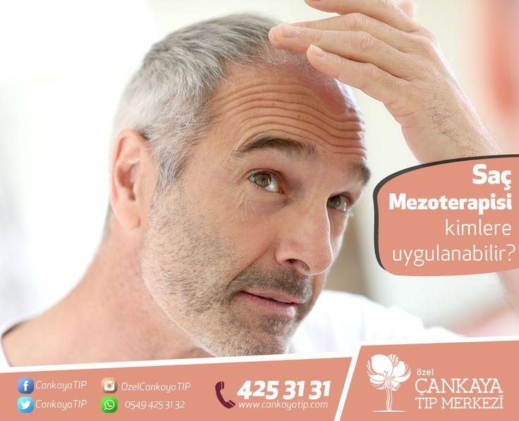 """Saç Mezoterapisi kimlere uygulanabilir?   Saç Mezoterapisi, hem kadına hem de erkeğe başarıyla uygulanabilmektedir.Mezoterapiden fayda gören saç dökülmeleri; strese bağlı, mevsimsel, metabolik nedenli saç dökülmeleri ve gebelik sonrası ani saç dökülmeleri olarak sıralanabilir. Özellikle kıl kökünde bir küçülmenin gözlendiği ve kılın oluşum ve büyüme evresi olan """"anajen evresinde"""" kısalmanın saptandığı """"androjenik alopesilerde (erkek tipi saç dökülmesi)"""" mezoterapi uygulanması faydalıdır."""