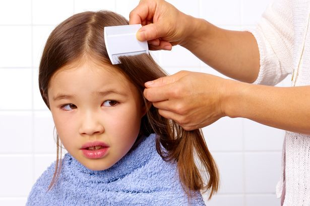 Can black people get lice is it true? Lice life cycle. Click here  http://licelifecycle.com/can-black-people-get-lice-is-it-true/