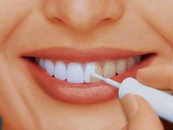 Как отбелить зубы дома без вреда для эмали в домашних условиях ...