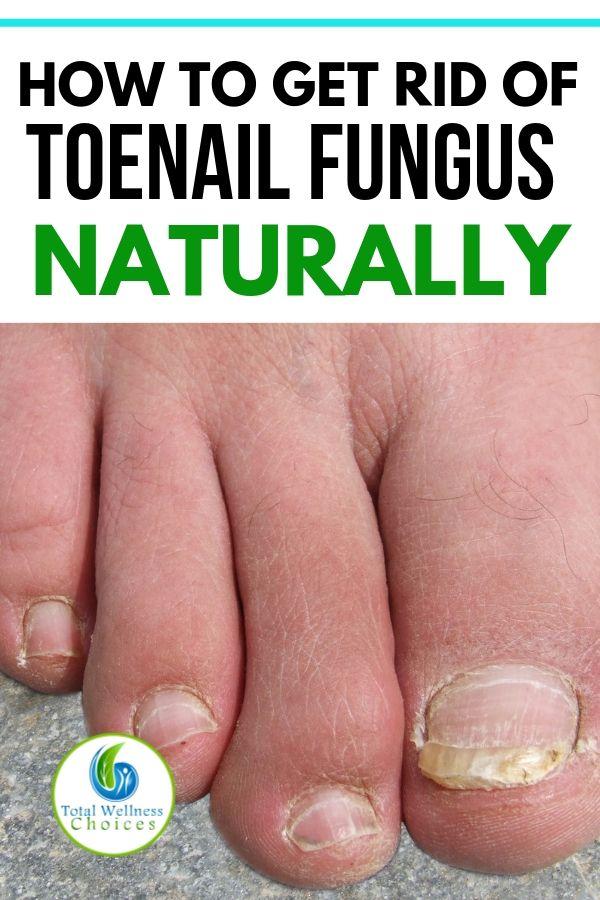 9 Best Natural Home Remedies for Toenail Fungus | Life Hacks ...