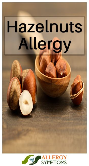 Hazelnuts Allergy #hazelnutsallergy http://allergy-symptoms.org/hazelnuts-allergy/