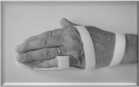 Dupuytren › Night splint for contracture | Forum for Dupuytren's contracture