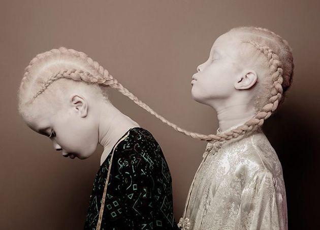 Brazilian Albino Twins Find Success As Fashion Models