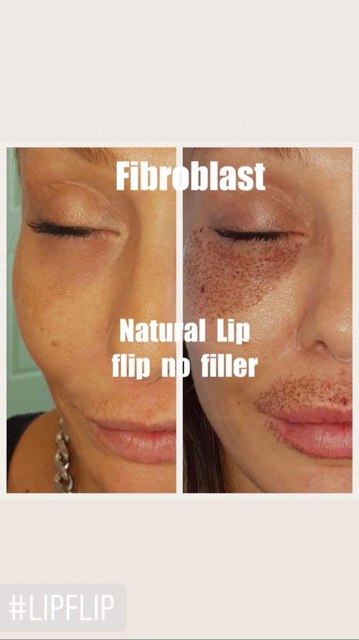 Contact us to get your lip flipped for a fuller look ...
