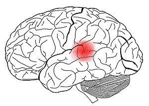 Cognición, lenguaje y aprendizaje: AFASIA DE WERNICKE