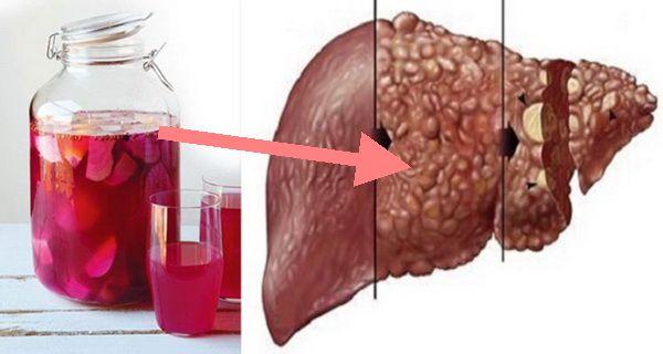 3 egyszerű hozzávaló segítségével könnyen megtisztíthatod a májad, és a veséd a méreganyagoktól! - Twice.hu