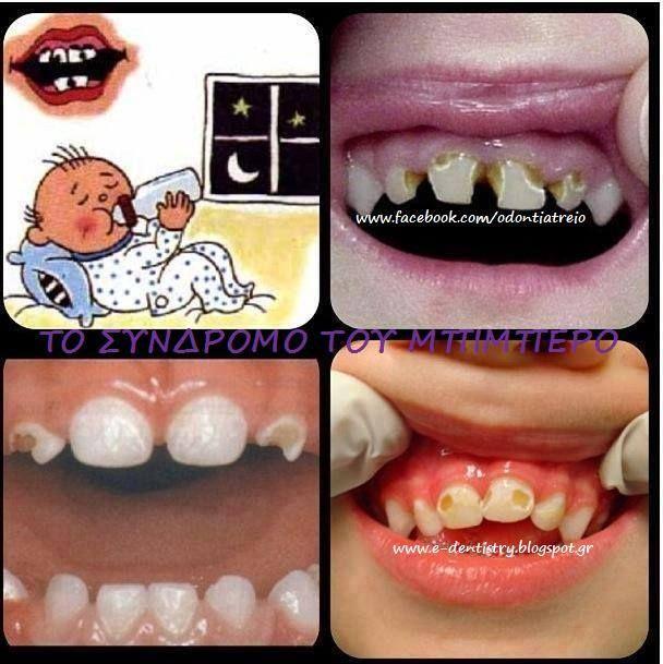 Είναι η πιο συνηθισμένη πάθηση των δοντιών των παιδιών κάτω των τριών ετών και αφορά τον απότομο τερηδονισμό του συνόλου ή σχεδόν του συνόλου των νεογιλών δοντιών, εξαιτίας της εκτεταμένης και λανθασμένης χρήσης του μπιμπερό ή του θηλασμού. Το σύνδρομο του μπιμπερό το συναντάμε συνήθως σε παιδιά που χρησιμοποιούν το μπιμπερό ή θηλάζουν για μεγάλο χρονικό διάστημα κατά τη διάρκεια της ημέρας ή κοιμούνται με αυτό..