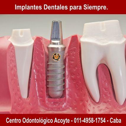 Todas las especialidades Odontologicas. Av. Acoyte 565 Ciudad Autonoma de Buenos Aires.  011-4958-1754