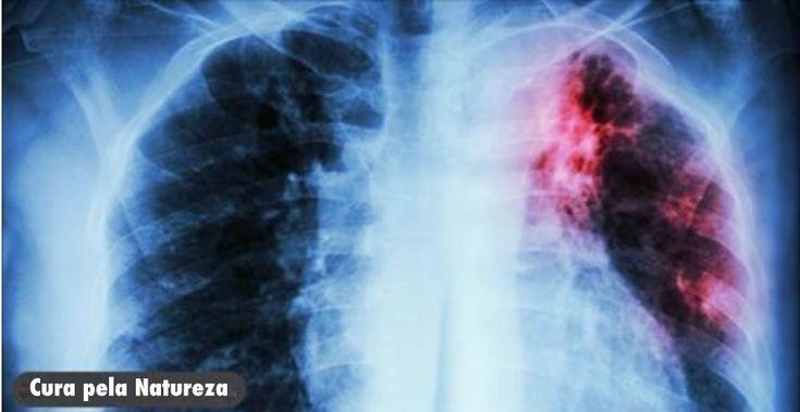 A Limpeza Dos Pulmões Que Qualquer Um Que Fuma Ou Já Fumou Precisa Fazer! - Leia e Descubra!