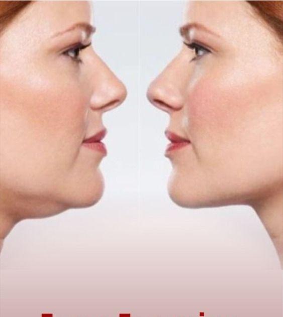 Reduzieren Sie das Fett vom Doppelkinn