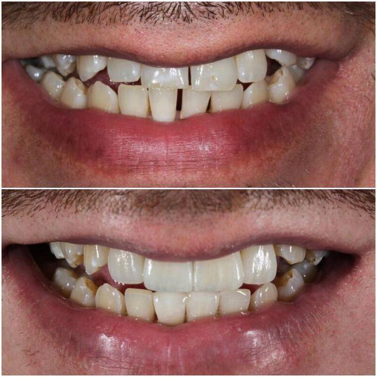 Нехотел делать такую работу,  потому что тут нужна ортодонтия.. Но пациент категорически не готов был носить несколько лет брекеты. В итоге поменяли улыбку 6-ю винирами. 4 наверху и 2 внизу. Чтобы сделать красиво остальные зубы надо все же одевать брекеты.